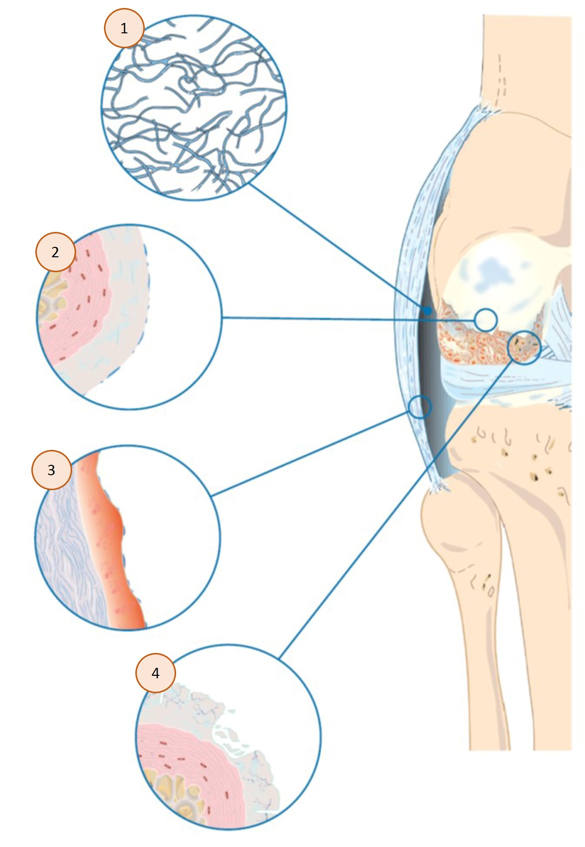 What Happens In Osteoarthritis Explain Osteoarthritis Synovial