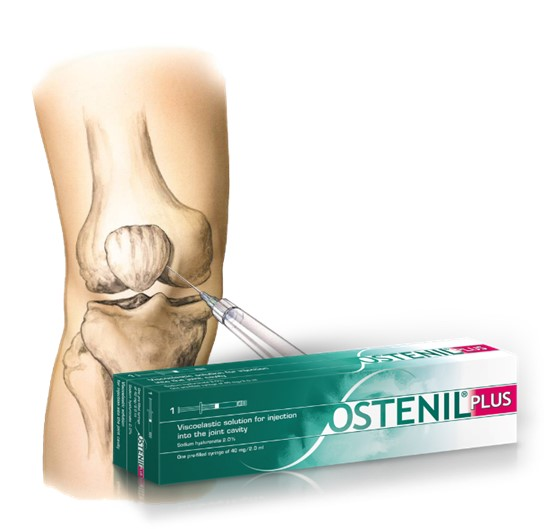 Knee injection with Ostenil Plus